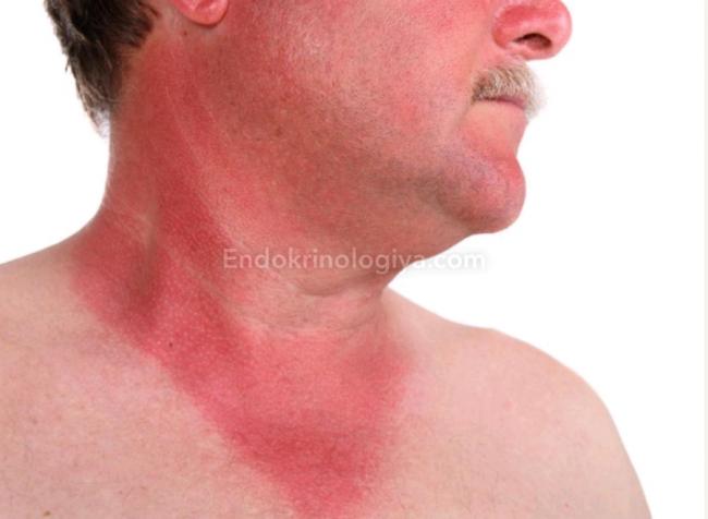 Зуд в области щитовидной железы во время приема медикоментов сдать на радиолампы на драгметалл