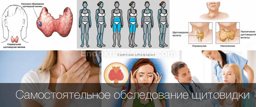 Как проверить работу щитовидной железы в домашних  376