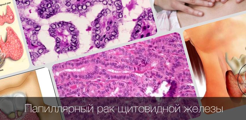 Дисплазия щитовидки