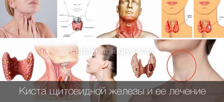 Вылечить щитовидку в домашних условиях 392