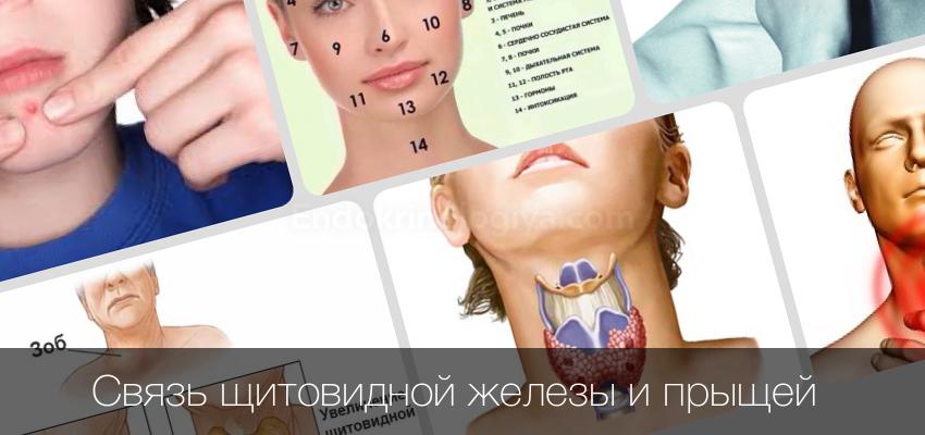 Прыщи на лице из-за щитовидной железы