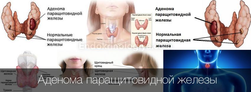 Беременность при диффузном изменении щитовидной железы 6