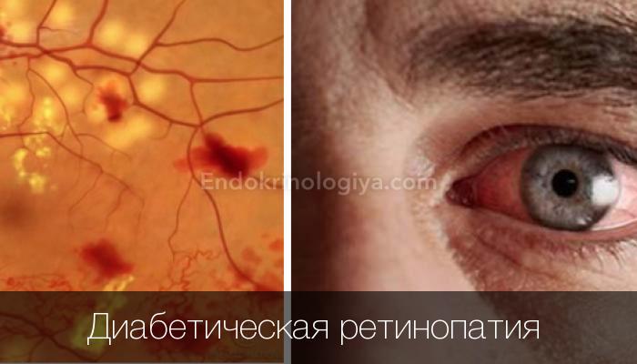 Что такое ретинопатия у больных сахарным диабетом