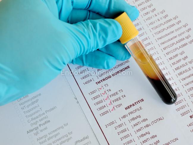 Птг анализ крови что это Справка от педиатра 3-я Чоботовская аллея